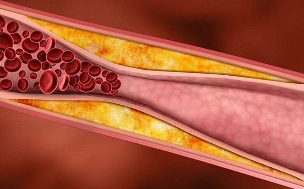 Các mảng xơ vữa có thành phần là cholesterol là nguyên nhân gây hiện tượng tắc hẹp mạch vành tim