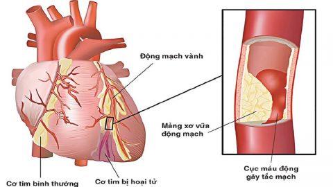 Tắc mạch vành tim: Nguyên nhân, triệu chứng, điều trị