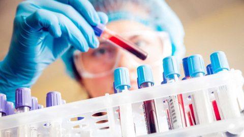 3 điều cần biết về phương pháp xét nghiệm PCT