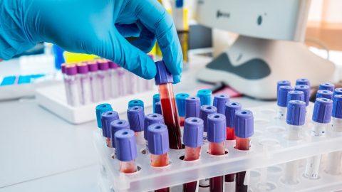 3 điều cần biết về xét nghiệm vitamin B12