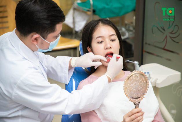 nẹp răng bằng mắc cài kim loại mặt ngoài