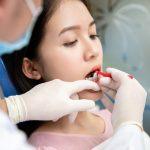 Nẹp răng trong bao lâu thì tháo được?