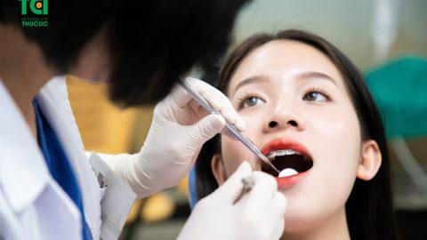 Các phương pháp nẹp răng thưa hiệu quả nhất