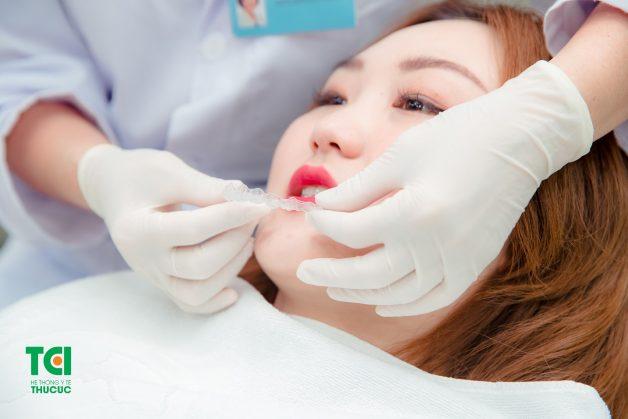 Nẹp răng trong suốt Invisalign là phương pháp tân tiến nhất hiện nay loại bỏ hoàn toàn bộ ba truyền thống mắc cài, dây cung và dây chun và thay thế bằng khay nhựa trong suốt