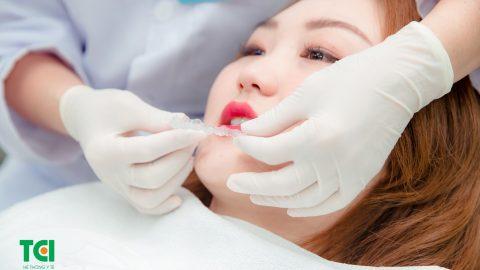 Nẹp răng vổ bằng phương pháp nào tốt nhất?