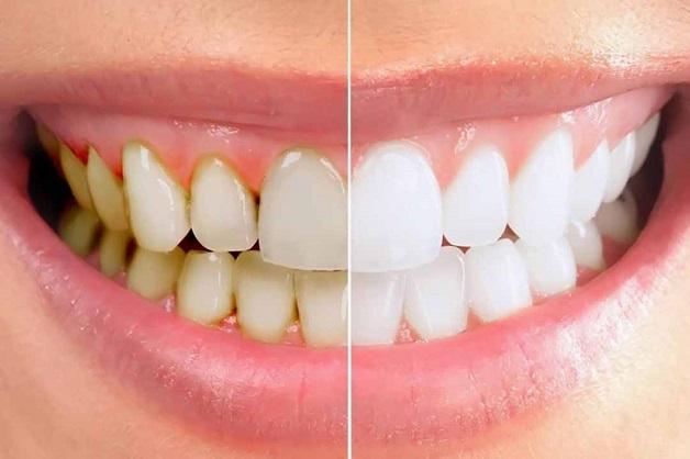 Cạo vôi răng là thủ thuật nha khoa giúp loại bỏ các mảng bám thức ăn trên răng cũng như vi khuẩn ra khỏi khoang miệng.