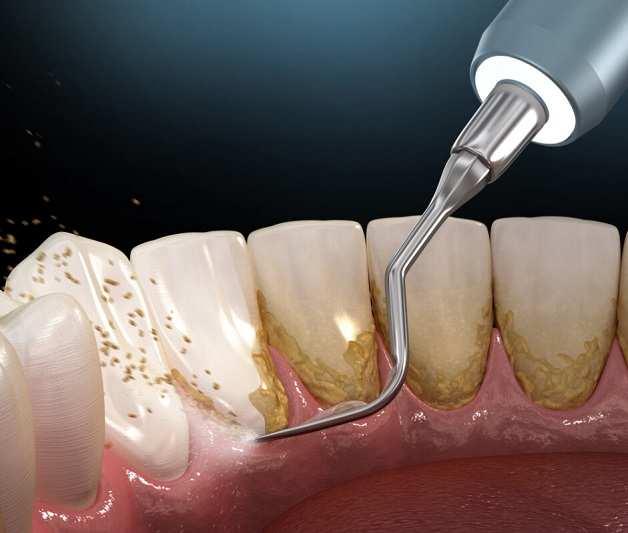 Bao lâu lấy cao răng 1 lần? Thời gian tốt nhất khoảng 6 tháng
