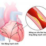 Bệnh mạch vành 3 nhánh là gì? Cách chẩn đoán, điều trị