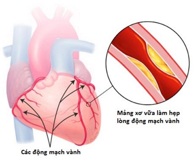 Bệnh 3 nhánh mạch vành là hiện tượng 3 nhánh động mạch chính đều bị tắc nghẽn
