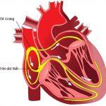 Suy nút xoang tim: Nguyên nhân, triệu chứng và điều trị