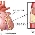 Bệnh tắc động mạch vành đe dọa sức khỏe, chớ chủ quan