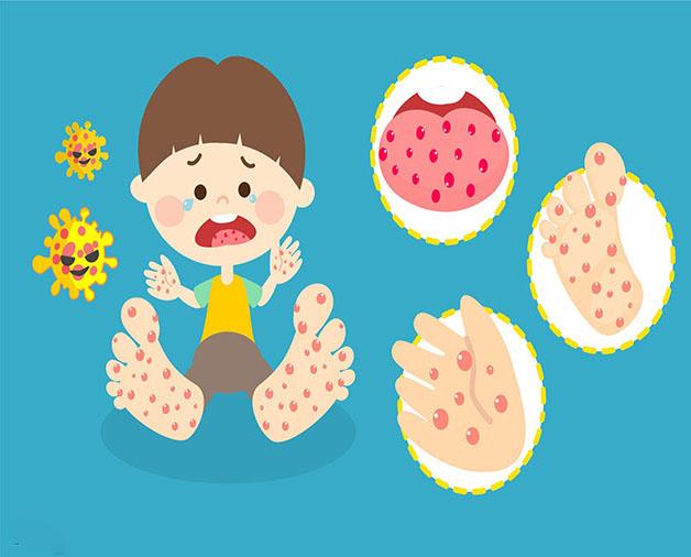 Dấu hiệu nhận biết bệnh tay chân miệng ở trẻ
