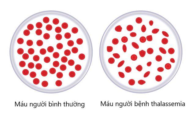 Thalassemia là một tình trạng thiếu máu huyết tán di truyền hoặc bẩm sinh với dấu hiệu điển hình là thiếu máu.