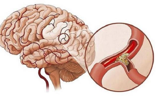Bị thiếu máu não và tác hại cực kỳ nguy hiểm