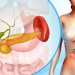 Những điều người bệnh cần biết nếu phát hiện bị viêm túi mật
