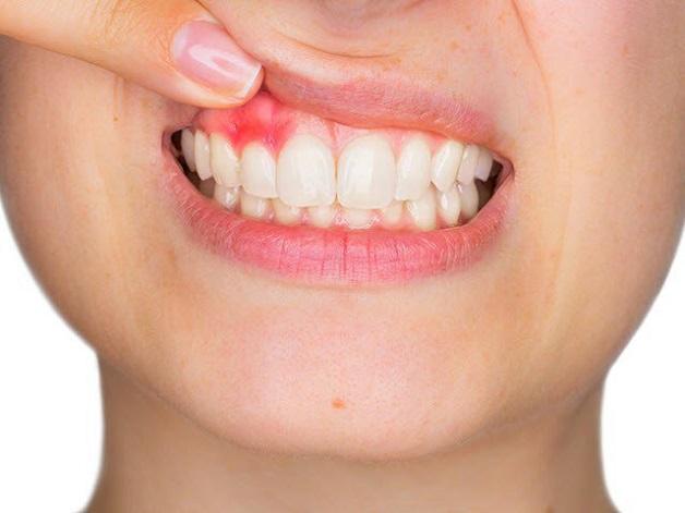 Khi bị nhiễm trùng vị trí tiếp xúc giữa răng sứ với nướu thường sưng, tấy đỏ,...