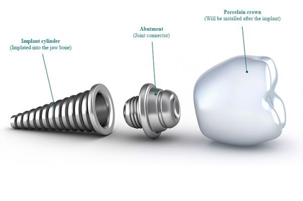 Cấu tạo implant gồm 3 phần: trụ implant, abutment và mão răng sứ