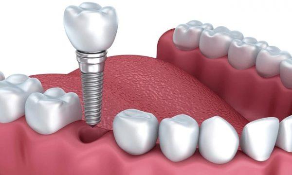 Cấy ghép răng implant là phương pháp hiện đại, thay thế răng đã mất bằng bộ ba trụ titanium, khớp nối Abutment và mão răng sứ