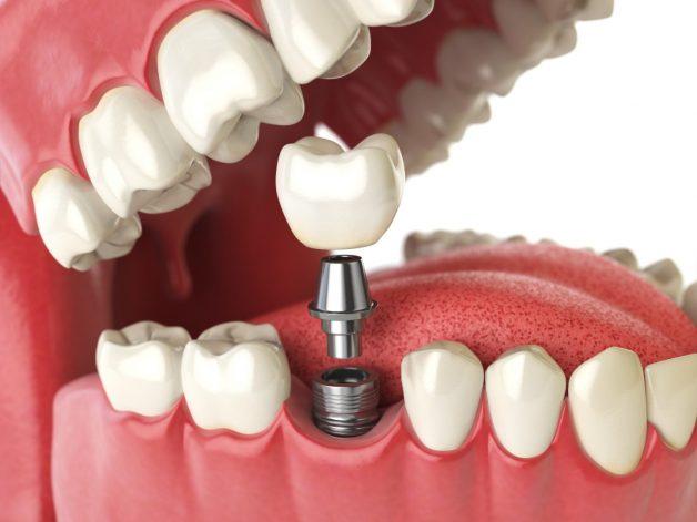 cấy ghép implant là phương pháp gì