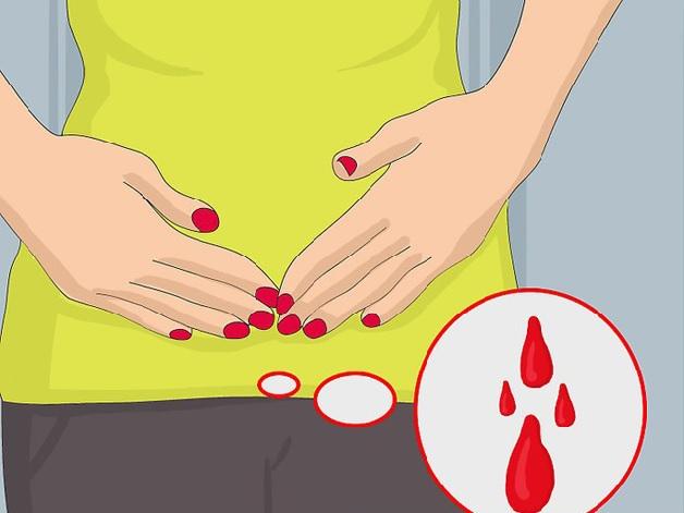Chảy máu âm đạo bất thường là dấu hiệu mang thai ngoài tử cung