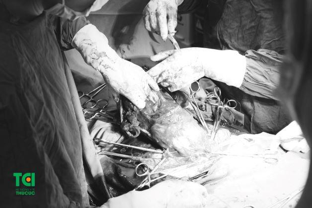 Hình ảnh rau tiền đạo trung tâm kèm rau cài răng lược của chị Vui trong quá trình phẫu thuật