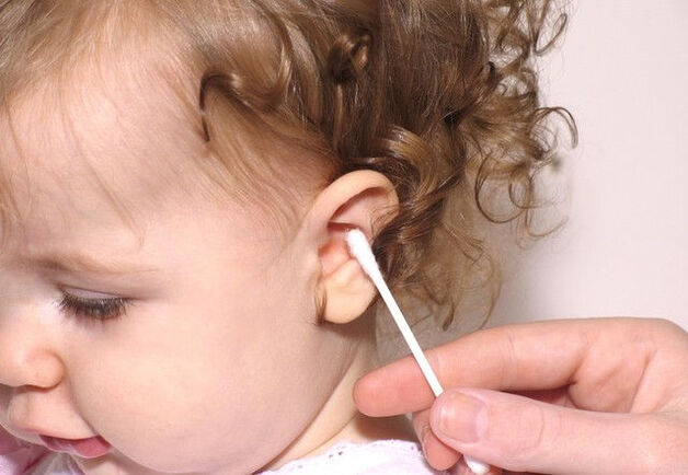 Ngoáy tai bằng tăm bông bị chảy máu