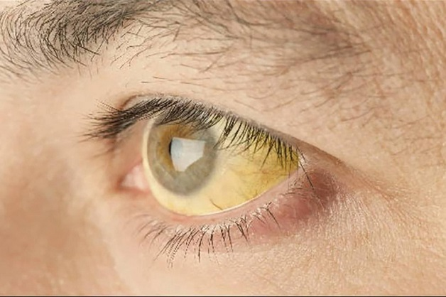 Vàng mắt là dấu hiệu viêm gan C thường thấy