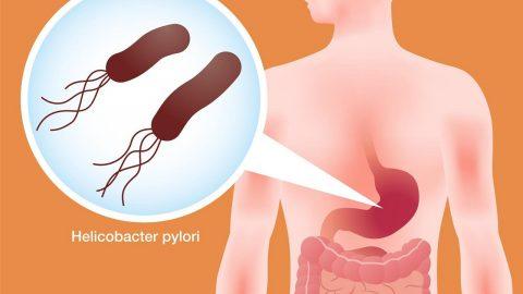 Phương pháp giúp người bệnh diệt vi khuẩn Hp trong dạ dày
