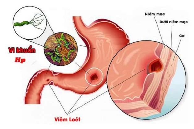 Không phải tất các các trường hợp bệnh đều phải diệt vi khuẩn Hp trong dạ dày
