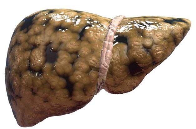 Bệnh gan nhiễm mỡ làm ảnh hưởng đến chức năng gan