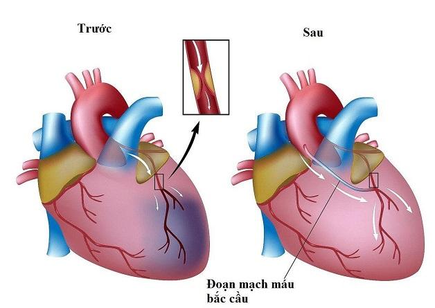 Nếu sử dụng thuốc không hiệu quả, bệnh nhân có thể phải phẫu thuật để điều trị tắc động mạch vành