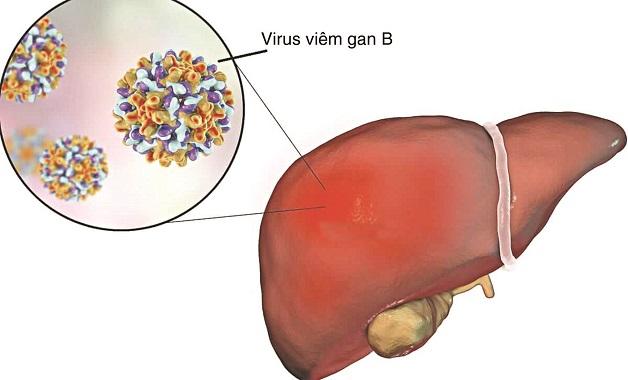 iêm gan B là căn bệnh nguy hiểm do virus HBV gây ra