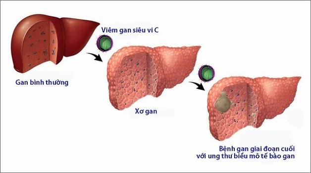 Bệnh viêm gan C phá hủy tế bào gan và dẫn đến ung thư gan