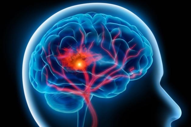 Đột quỵ chảy máu não là gì