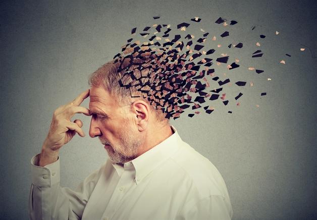 Người bị đột quỵ triệu chứng xuất hiện như thế nào