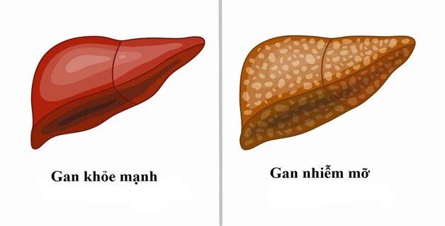 Sự khác nhau giữa gan bình thường và gan nhiễm mỡ