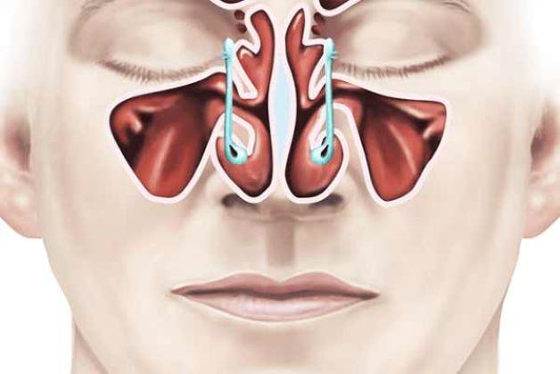 Phẫu thuật nội soi xoang mũi