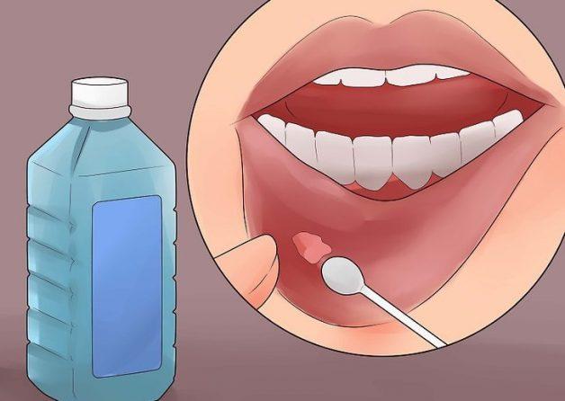 Thuốc trị nhiệt miệng gồm những loại nào?