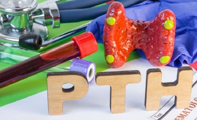 tìm hiểu về xét nghiệm PTH