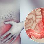 Hội chứng ruột kích thích K58 điều trị như thế nào?