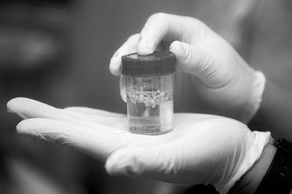 Khối u được hút bỏ trọn vẹn sau khi điều trị.
