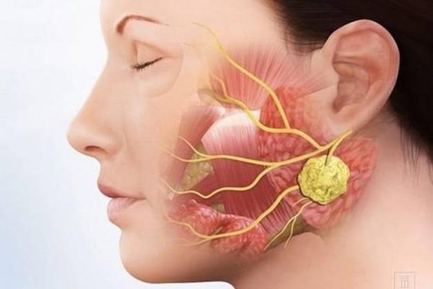 Người bệnh mắc sỏi tuyến nước bọt và các loại ung bướu cũng có thể bị khô miệng.