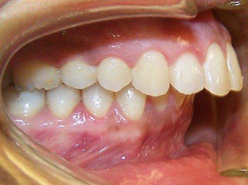 Khớp cắn sâu là tình trạng hàm dưới lọt sâu vào bên trong và khuất sâu ở trong hàm trên