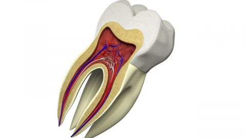 Có nên lấy tủy răng hàm cho bé không?