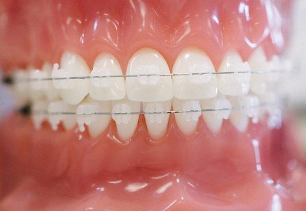 Mắc cài sứ có màu sắc tự nhiên, giống răng thật và ít lộ hơn khi giao tiếp.