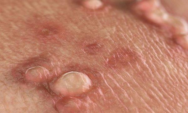 Mục cóc sinh dục gây ra bởi virus HPV- một chủng virus phổ biến lây lan qua đường tình dục