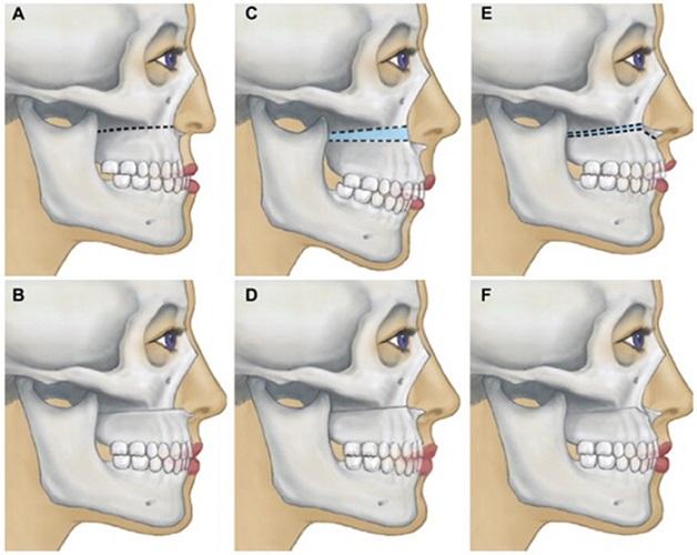 Phẫu thuật hàm là kỹ thuật chỉnh hình trong nha khoa để cải thiện cách hoạt động của hàm và răng và diện mạo khuôn mặt.