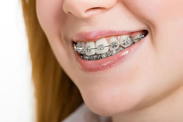 Niềng răng mắc cài được xem là phương pháp hoàn hảo nhất cho nắn chỉnh răng hô vì nó điều trị tất cả những trường hợp phức tạo nhất.