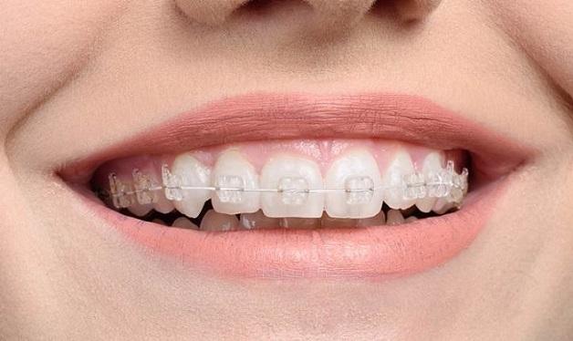 Mắc cài bằng sứ có màu giống với màu răng nên khó phát hiện và người niềng có thể tự tin hơn khi giao tiếp.
