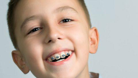 Nẹp răng cho trẻ em và những vấn đề cần lưu ý